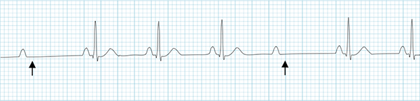 ECG second AV block, Mobitz II, non-conducted P waves