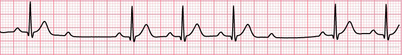 ECG second degree av block, Mobitz 2, narrow qrs, 4:3