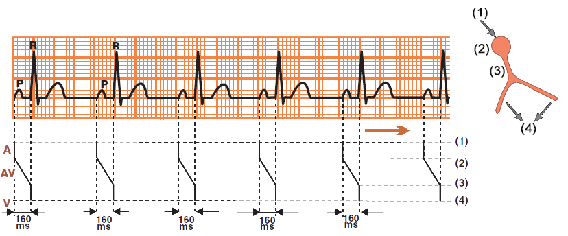 Laddergram with ECG sinus rhythm