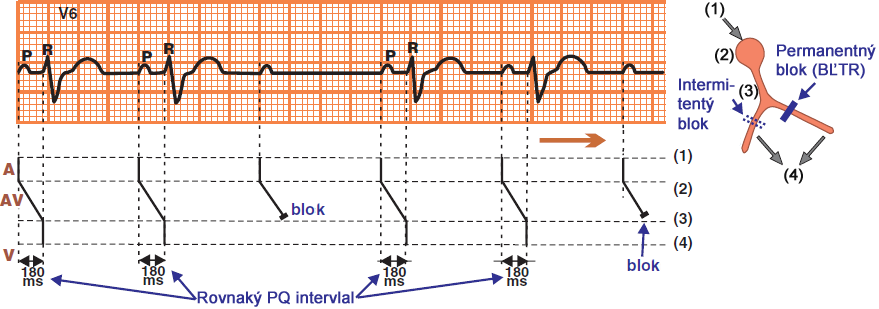 Laddergram, ecg: 2nd AV block, Mobitz II, broad QRS complexes, distal to the Bundle of His