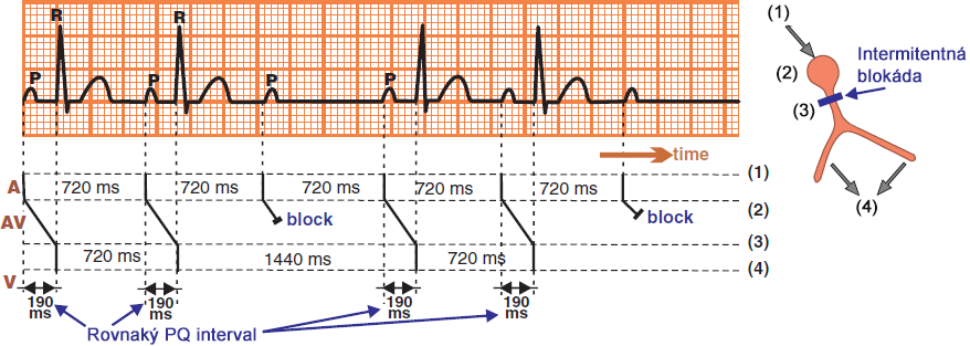 Laddergram, ecg: 2nd AV block, Mobitz II, narrow QRS complexes, His bundle block
