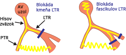 Site of LBBB main trunk, or block of both left fascicles