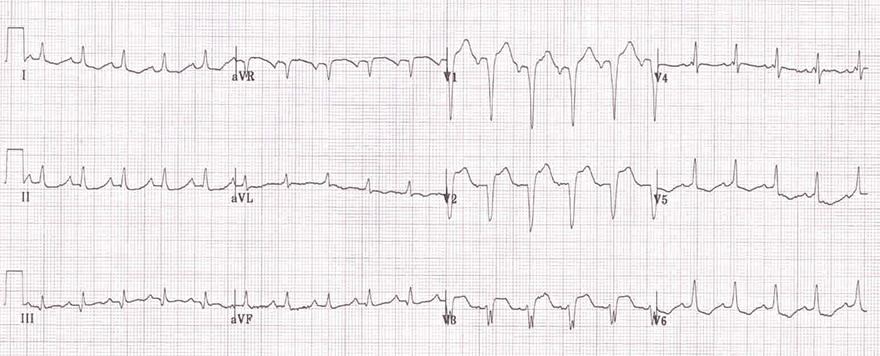 ECG incomplete LBBB, narrow QRS complex, Absence lateral q wave, R peak time greater than 60ms, broad notched slurred R wave