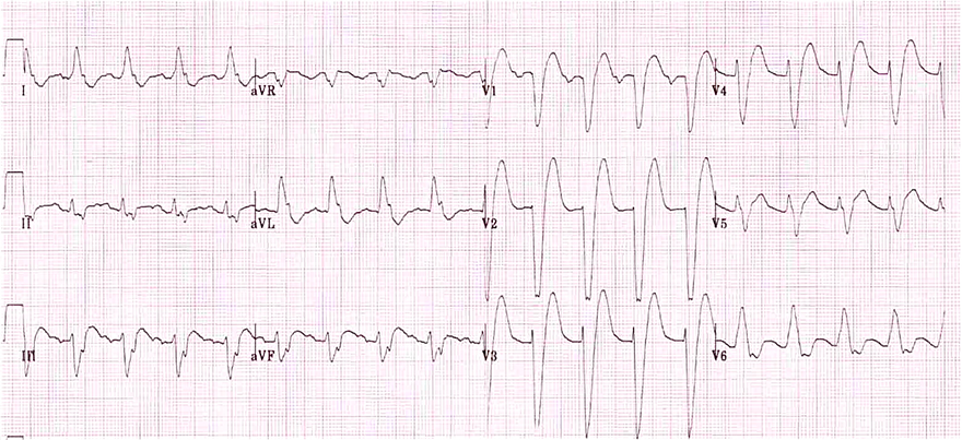 ECG complete LBBB, broad notched R wave, Dominant S wave, absent q waves in lateral leads