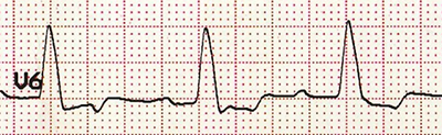 ECG (V6) LBBB monophasic R wave, appropriate discordance