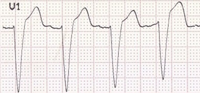 ECG (V1) LBBB, rS morphology, tiny R, deep S wave, appropriate discordance (ST elevation, upright T wave)