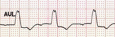 ECG (aVL) LBBB, RSR M-shaped QRS complex morphology, notched R wave