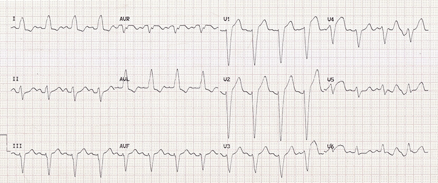 ECG LBBB, broad QRS, Dominant S wave, Absence lateral Q wave, appropriate discordance