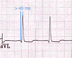 ECG left anterior hemiblock (LAH), R peak time in lead aVL of 45ms or more