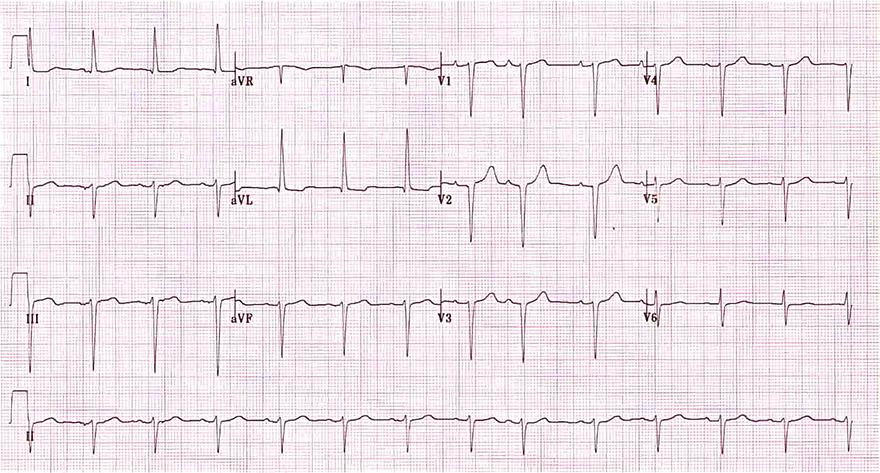 ECG left anteriro fascicular block (LAFB), narrow QRS, left axis deviation, R peak time