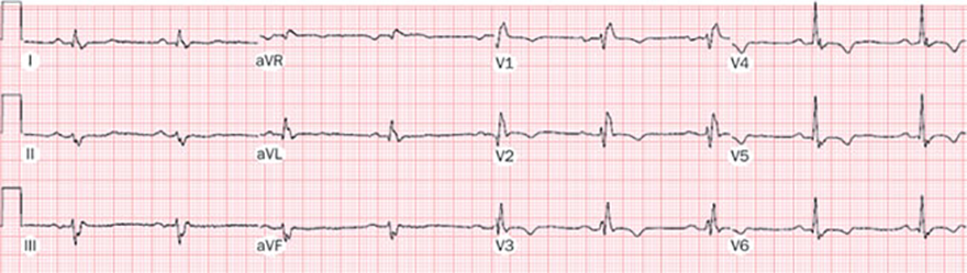 ECG Trifascicular block, Left anterior hemiblock, First degree AV block, Right bundle branch block (RBBB)