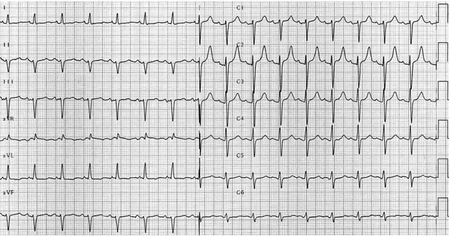 ECG left anterior hemiblock (LAH), small Q wave (I, aVL), small r wave (II, III, aVF), narrow QRS (80-110ms), prolonged R peak time