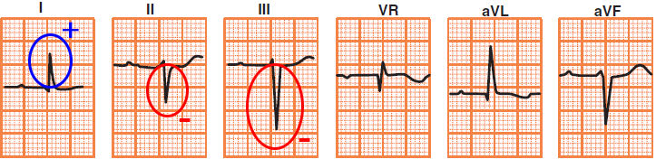 ECG criteria, left anterior hemiblock (LAH), left axis deviation, qR pattern in aVL, R peak time, narrow QRS complex