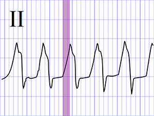 ECG ventricular tachycardia, The R Wave Peak Time (RWPT)