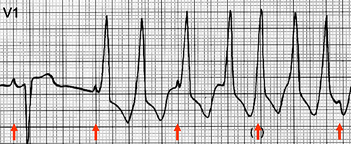ECG ventricular tachycardia, av dissociation (P and QRS complexes at different rates)