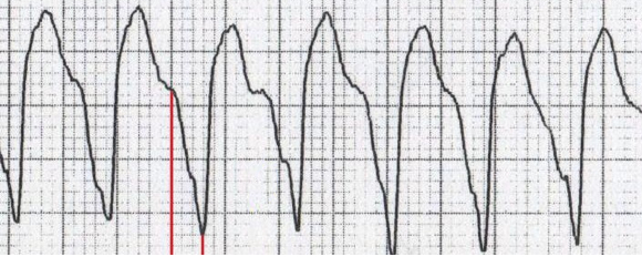 ECG brugada sign, ventricular tachycardia, RS interval