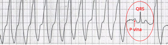 ECG capture beat (P wave, narrow QRS), ventricular tachycardia (wide QRS)