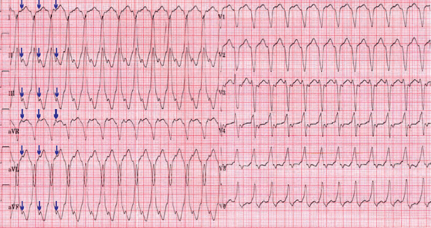 ECG ventricular tachycardia, absence typical LBBB morphology, RS interval more than 100ms, Brugada sign, ventriculoatrial (VA) association