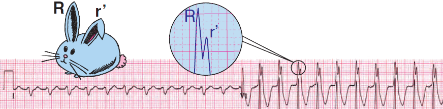 ECG ventricular tachycardia, RBBB-like pattern (V1). Taller left rabbit ear