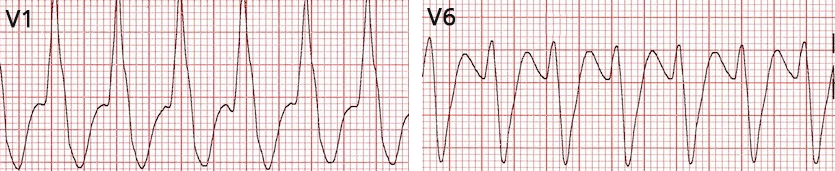 ECG ventricular tachycardia, Absence of typical Right bundle branch block (RBBB) morphology