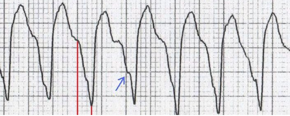 ECG josephsons sign, brugadas sign, ventricular tachycardia, Notching near the nadir of the S-wave