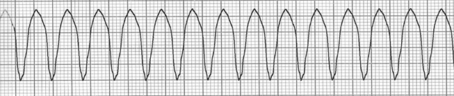 ECG sustained ventricular tachycardia