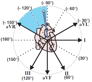 ventricular tachycardia, extreme right axis deviation - northwest
