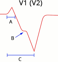ECG ventricular tachycardia (V1), Absence of typical LBBB morphology