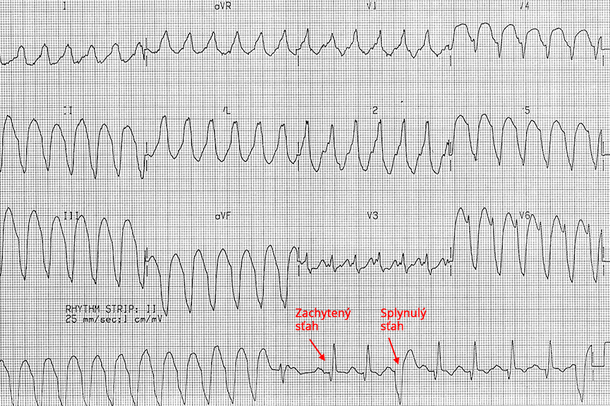 ECG monomorphic ventricular tachycardia, fusion beat, positive concordance, brugada sign, RS interval, r wave peak time lead II