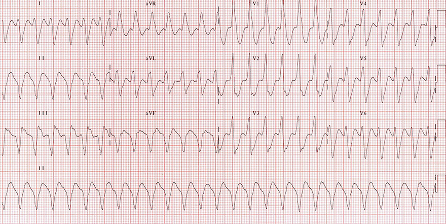 ECG monomorphic ventricular tachycardia, extreme right axis, brugada sign, josephson sign, R Wave Peak Time