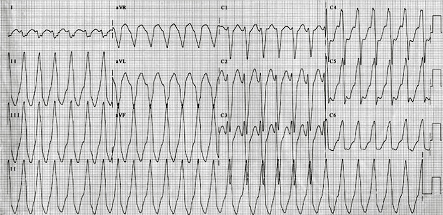 ECG Right Ventricular Outflow Tract (RVOT) Tachycardia, precordial transition R/S  V4, inferior axis, LBBB-like morphology