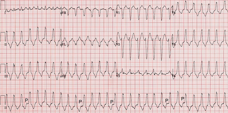 ECG Right ventricular outflow tract (RVOT) ventricular tachycardia, precordial transition, Inferior axis, AV dissociation