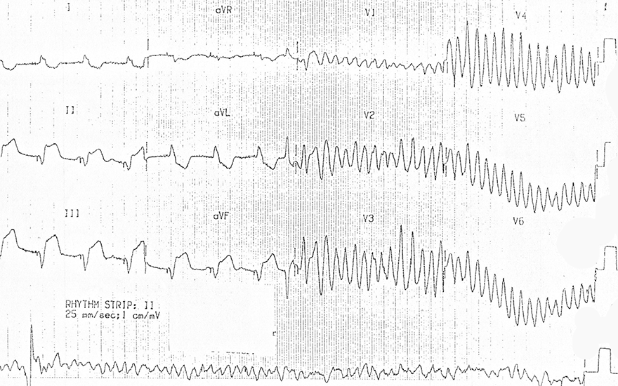 ECG pacemaker spikes, inferior STEMI infarction, Polymorphic ventricular tachycardia, Ventricular fibrillation