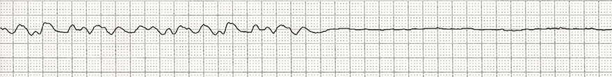 ECG fine ventricular fibrillation and asystole