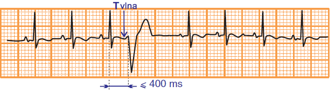 ECG phehomeno R on T, coupling interval, premature ventricular complex