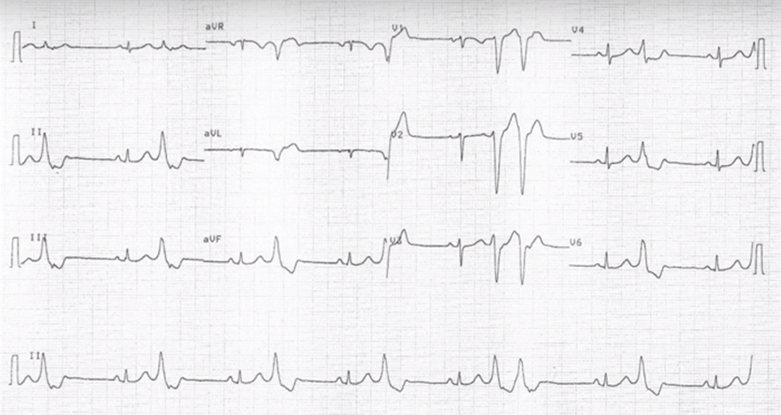 ECG premature ventricular complex localisation, heart base, and right ventriculi
