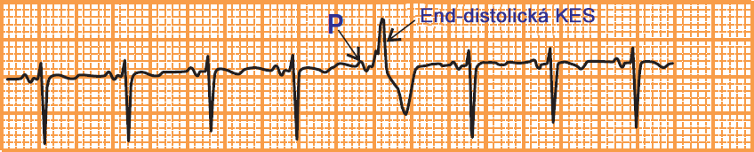 ECG end distolic premature ventricular complex, short PR interval