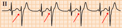 ECG premature ventricular complex (PVC) bigeminy - every other beat is a PVC