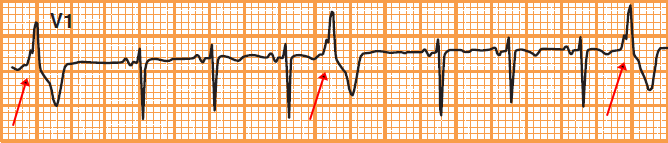 ECG premature ventricular complex (PVC) quadrigeminy — every fourth beat is a PVC