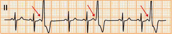 ECG premature ventricular complex (PVC) trigemini - every third beat is a PVC