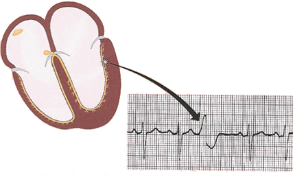 ECG ectopic focus depolarisation, and premature ventricular complex