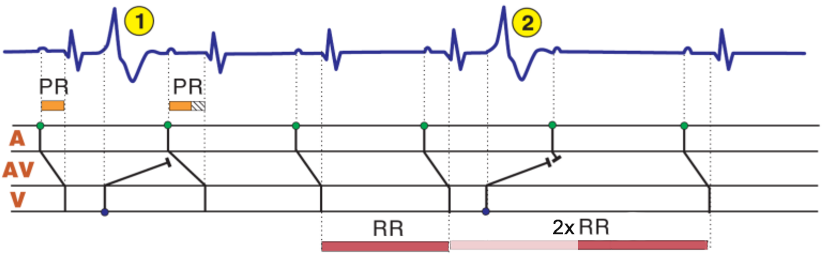 ECG laddergram, concealed conduction, sandwich extrasystole, Interpolated premature ventricular complex (PVC),