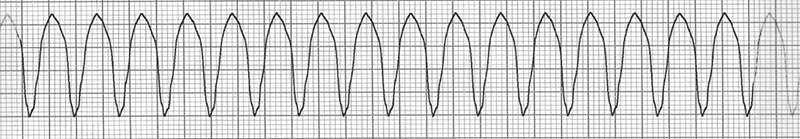 ECG sustained ventricular tachycardia, broad qrs complexes