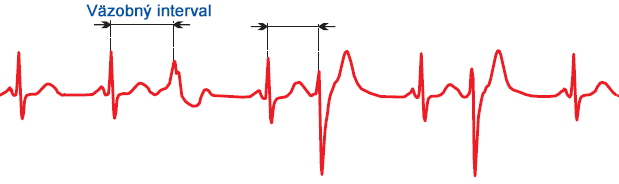 ECG multifocal premature ventricular complex, variable coupling interval, variable QRS complexes