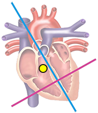 ventricular ectopic focus in right ventriculi, heart base