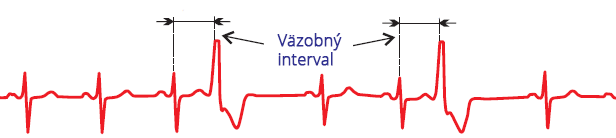 ECG sinus rhythm, premature ventricular complex, fixed coupling interval, full compensatory pause, broad QRS complex