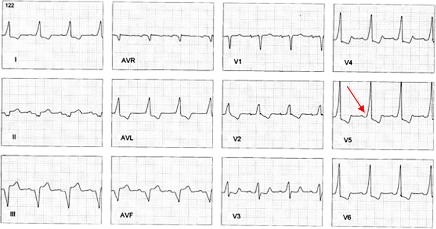 ECG Mahaim type preexcitation syndrome, normal PR interval, Long QRS, Delta Wave