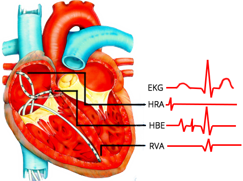 electrophysiology study (EPS) heart, Intracardiac electrograms, HRA = high right atrial electrogram,HBE = His bundle electrogram, A = low right atrial activity, H = His bundle activity, and V = ventricular septal activity, P–R, P–A, A–H, and H–V intervals, RVA - Right Ventricular Apex