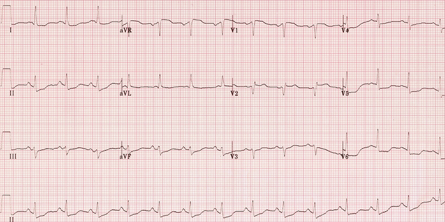 ECG acute coronary syndrome, non-ST segment elavation, NSTEMI infarction, unstable angina