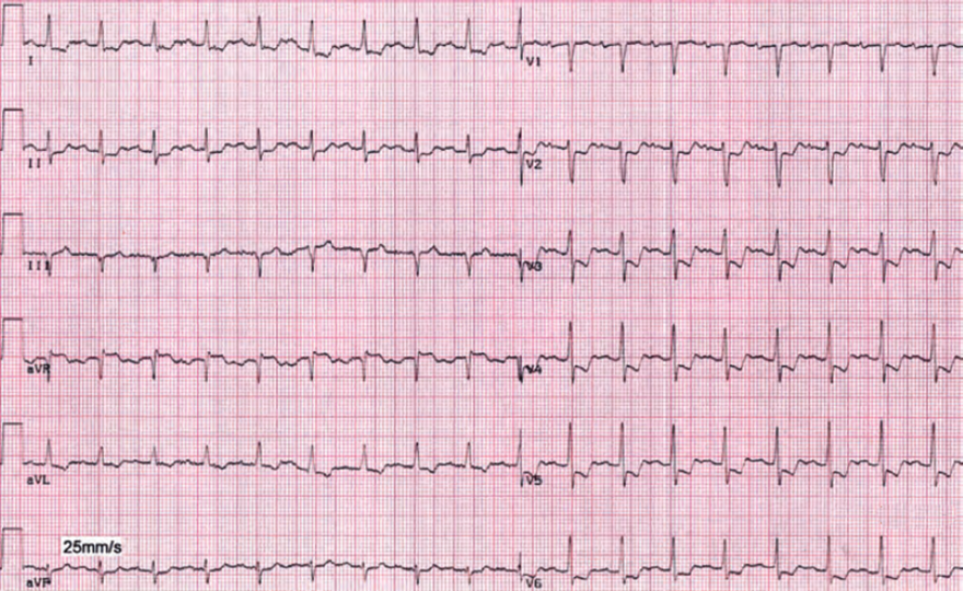 ECG post exercise ischemia, sinus tachycardia, ST depression, T wave inversion, ST elevation aVR